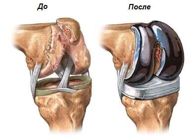 коленный сустав до и после эндопротезирования