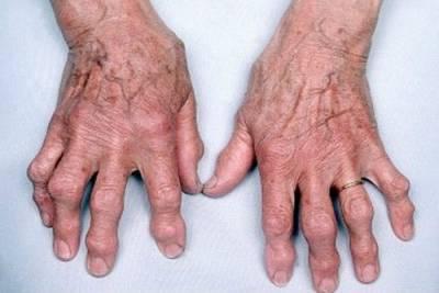 Лечение артроза артрита коленного сустава