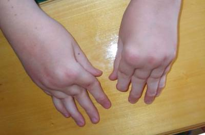 Деформация рук при ревматоидном артрите