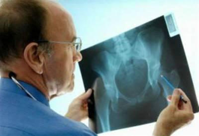 Врач изучает рентген тазобедренных суставов