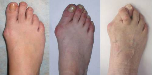 Степени артроза большого пальца