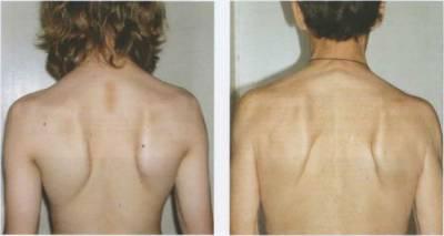 Болит спина слева под лопаткой