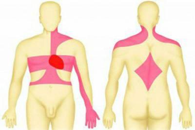 Боль пр приступе стенокардии