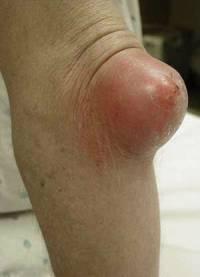 Гнойный артрит локтя