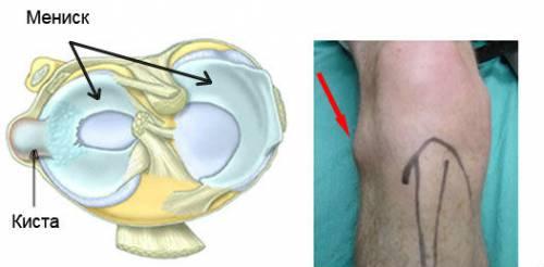 Киста мениска коленного сустава