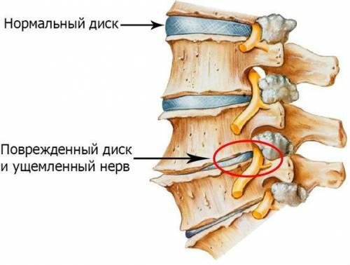 Ущемление нервов при заболеваниях позвоночника