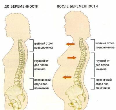 Изменения позвоночника при беременности