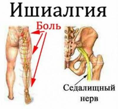 Болит левая часть поясницы