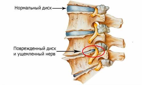 Боль в левой части спины внизу