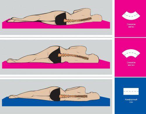 Что такое унковертебральный артроз шейного отдела и как его лечить