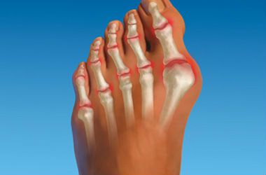 Артроз первого пальца стопы