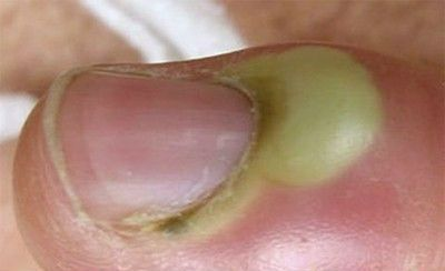 Гнойное воспаление большого пальца ноги