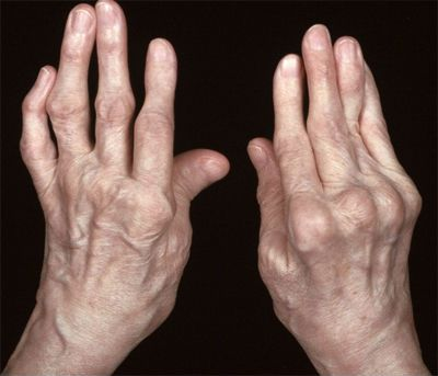 деформация кисти при ревматоидном артрите