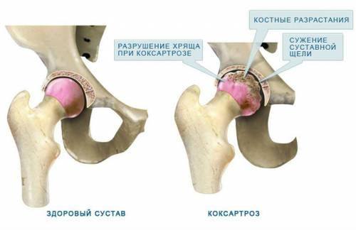 Изменения сустава при коксартрозе