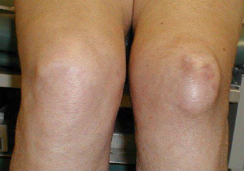 Арртроз болезнь коленного сустава