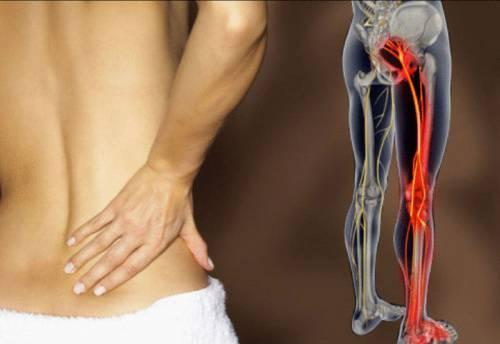 Повреждение нерва при остеохондрозе
