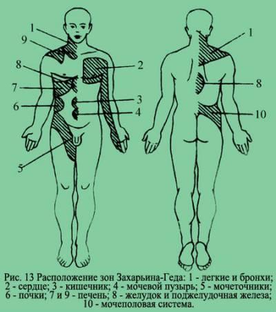 Тейпы кинезио от боли в спине