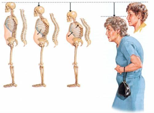 Горб у женщины с остеопорозом