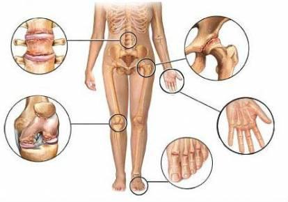 Поражение суставов при остеоартрозе