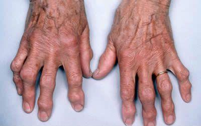 Деформация кистей рук