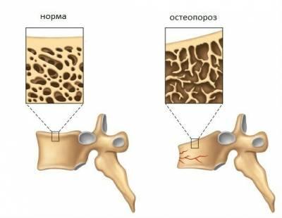Структура нормальной кости и при остеопорозе