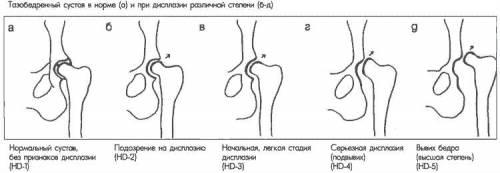 Дисплазия ног у детей