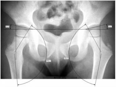 Рентгенография тазобедренного сустава