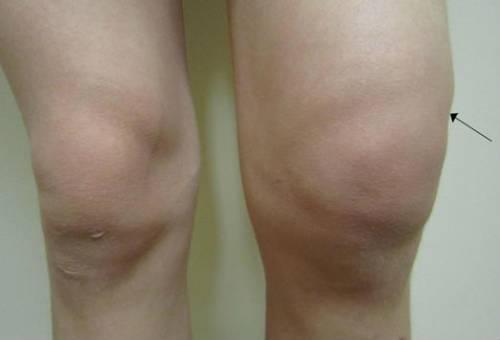 Гемартроз левого колена