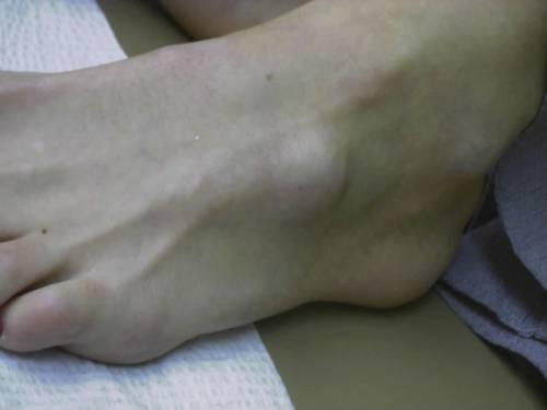 Самая частая локализация гигром стопы - внешняя поверхность тыльной стороны.
