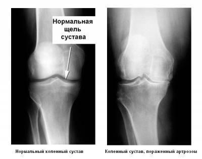 Рентгенография коленных суставов