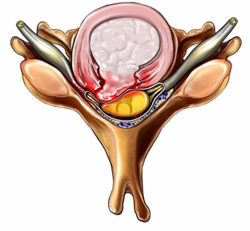 Сдавливание спинного мозга межпозвоночной грыжей