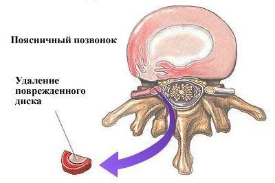 Операция дискэктомия