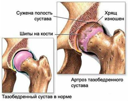 Склероз коленного сустава