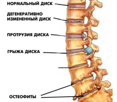 Симптомы шейно-грудного остеохондроза позвоночника и методы лечения