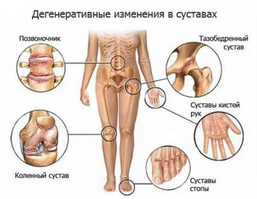Дегенеративно-дистрофические заболевания суставов