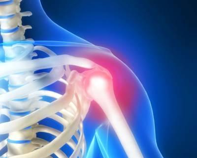 Импинджмент синдром плечевого сустава лечение