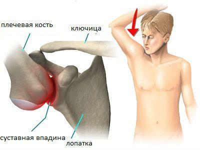 Лечение синдрома левого плечевого сустава