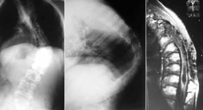 Кифосколиоз грудного отдела позвоночника 1 степени