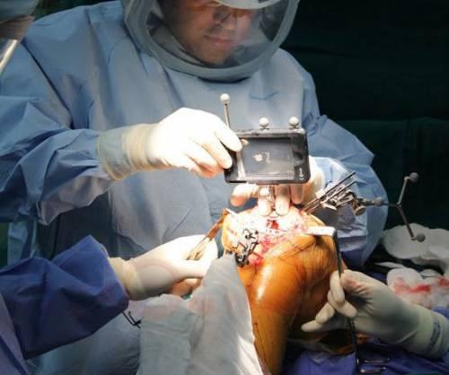 Операция на коленном суставе