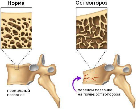 Остеопороз и перелом позвонка