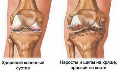 Артроз сустава