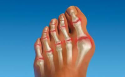 Артрит первого пальца стопы