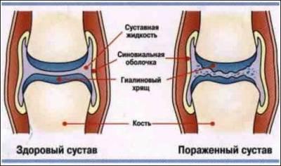 Глина для лечение суставов