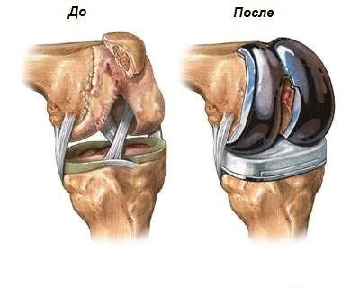 Как лечить суставы ног