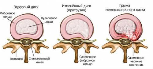 Этапы формирования грыжи позвоночника