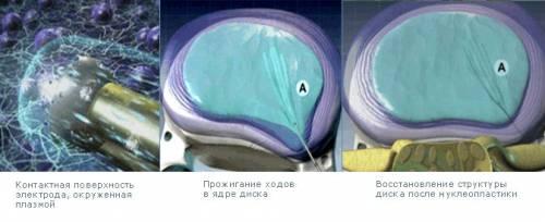 Нуклеопластика