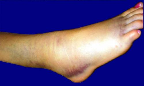 Деформирующий остеоартроз голеностопного сустава