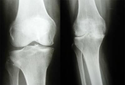 Рентгенограмма коленных суставов
