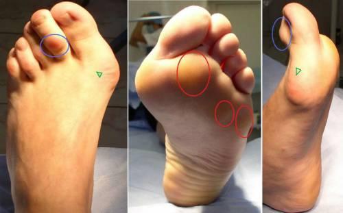 Остеоартроз стопы 2 степени лечение
