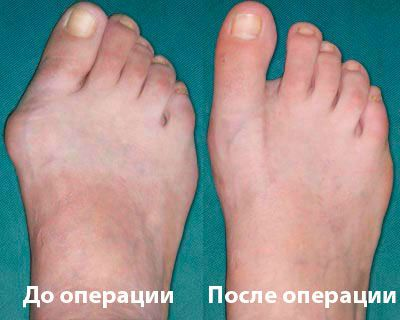 До и после операции при остеоартрозе стопы